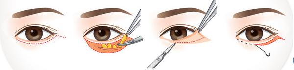 4 bước phẫu thuật lấy mỡ bọng mắt