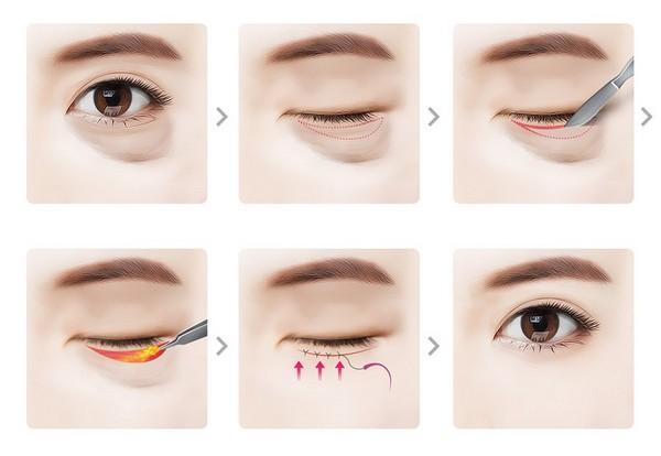 quy trình tiểu phẫu lấy mỡ bọng mắt - cắt da thừa mi dưới
