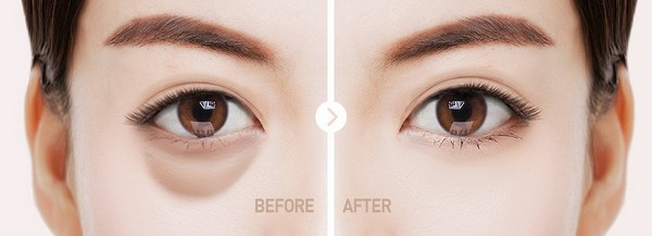 trước và sau khi lấy mỡ bọng mắt