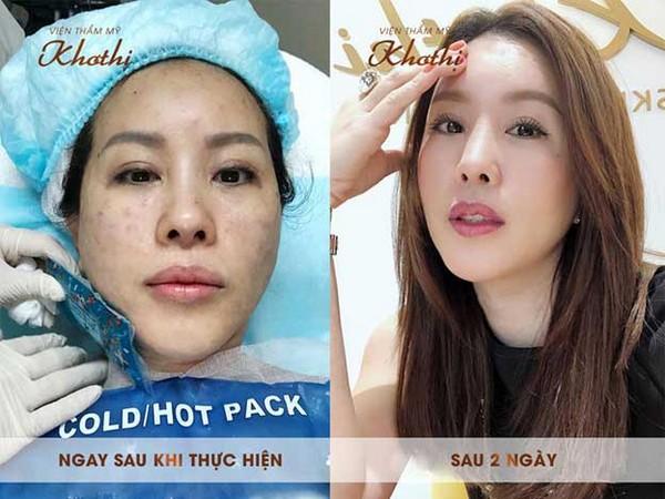 Hoa hậu Thu Hoài sau khi thực hiện tiêm thủy quang Diamond.