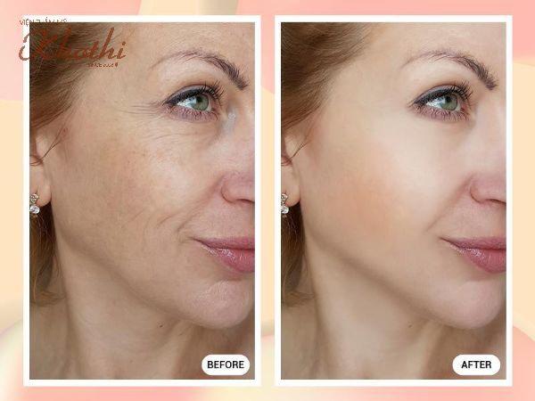 Người phụ nữ lấy lại nét tươi trẻ trên gương mặt ngay sau khi thực hiện với phẫu thuật căng da
