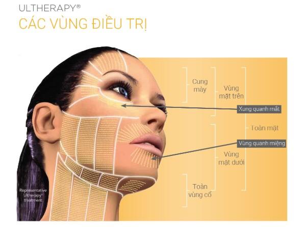 Các vùng điều trị Ultherapy