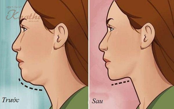 Gương mặt người phụ nữ có nhiều nọng cằm đã trở nên thon gọn hơn sau khi thực hiện các động tác tập luyện