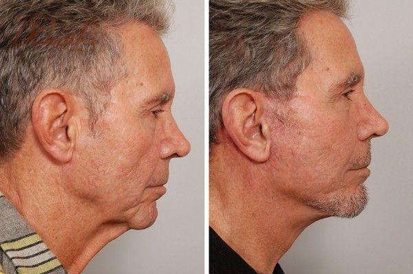Các quý ông cũng có thể nâng cơ mặt nhờ liệu pháp này
