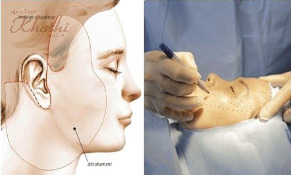 Cần có sự thăm khám và tư vấn của bác sĩ chuyên môn trước khi tiến hành nâng cơ phẫu thuật.