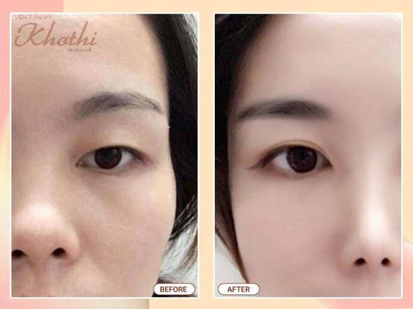 Kết quả mắt trẻ trung, hết da thừa chùng nhão sau khi thực hiện phẫu thuật căng da dưới cung mày.
