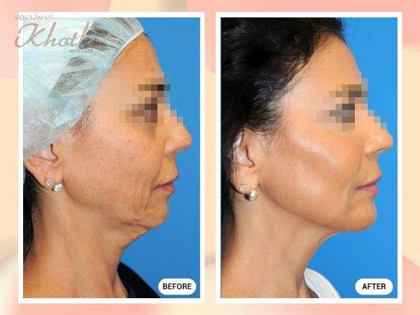 Gương mặt cân đối, hài hòa sau phẫu thuật nâng gò má thẩm mỹ.