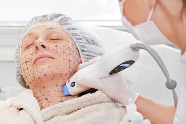 Công nghệ nâng cơ mặt Thermage đang được dùng điều trị tình trạng lão hóa gương mặt cho một người phụ nữ