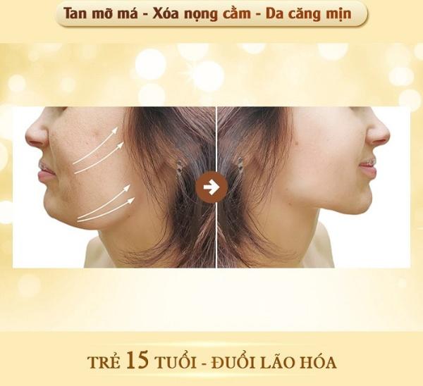 Chỉ trong 60 phút, công nghệ nâng cơ mặt Ultherapy giúp người phụ nữ có gương măt thon gọn và đẹp sắc sảo