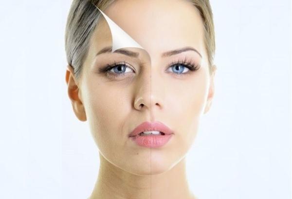 Người phụ nữ trẻ hơn nhờ công nghệ nâng cơ mặt RF tác động trực tiếp đến các nếp nhăn trên da. Khắc phục tình trạng chảy xệ hiệu quả
