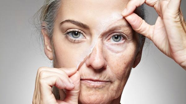 Da mặt bị chảy xệ sau quá trình giảm cân