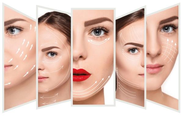 Nâng cơ mặt bằng chỉ collagen