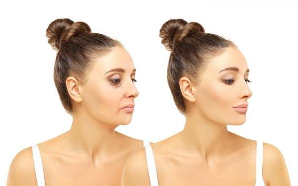 Khuôn mặt được nâng cơ sau khi tiêm chất làm đầy