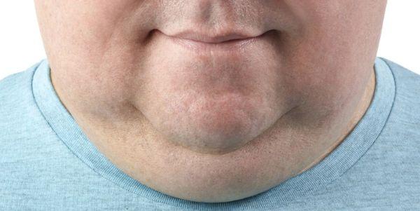 Gương mặt với nọng cằm quá lớn cần phải thực hiện biện pháp phẫu thuật căng da