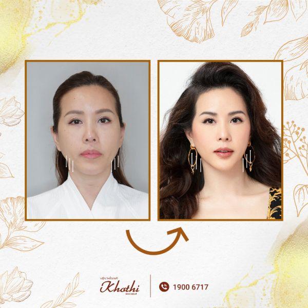 Hoa hậu Thu Hoài lấy lại nét thanh xuân bằng công nghệ Thermage FLX tại Khơ Thị