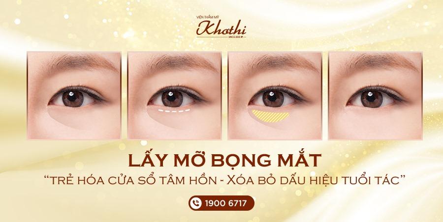 lấy mỡ bọng mắt giúp giảm dấu hiệu tuổi tác