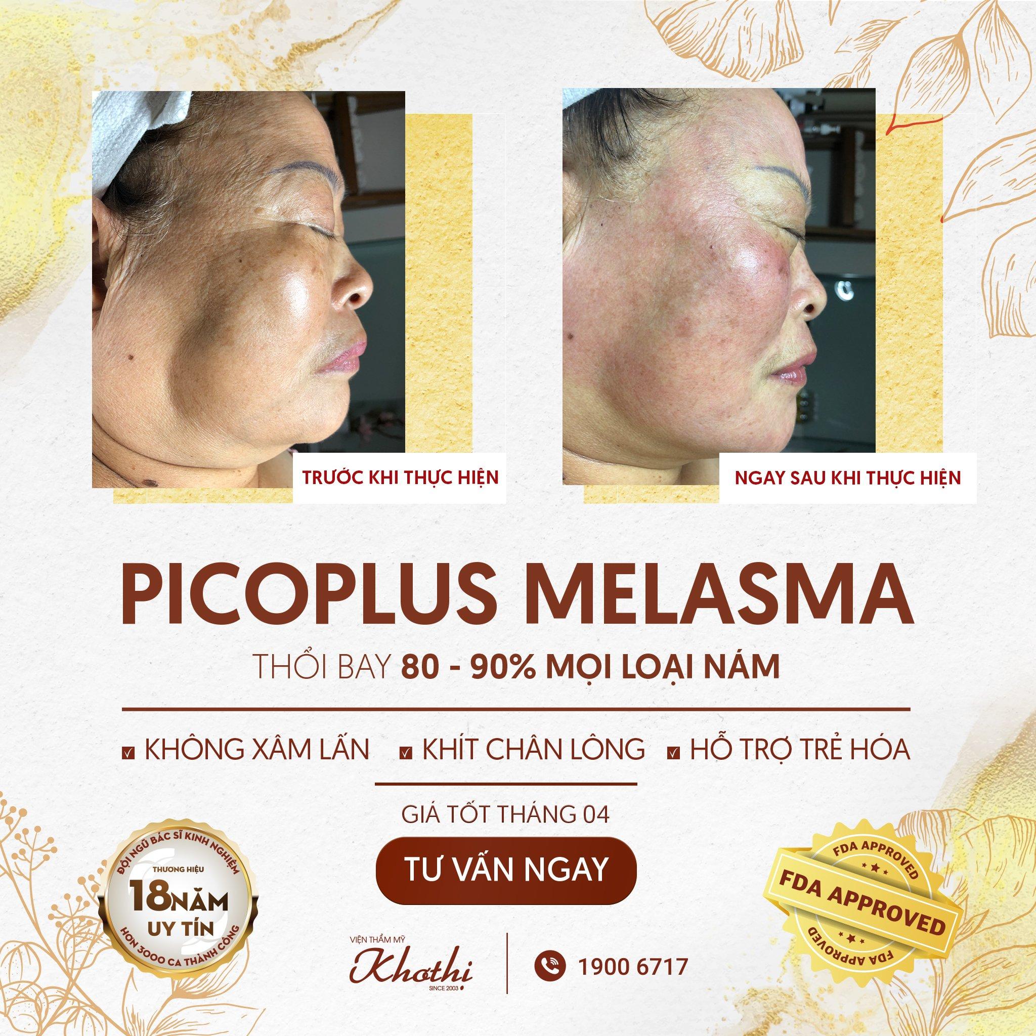 Trị nám triệt để với Picoplus Melasma - Công nghệ #1 thế giới